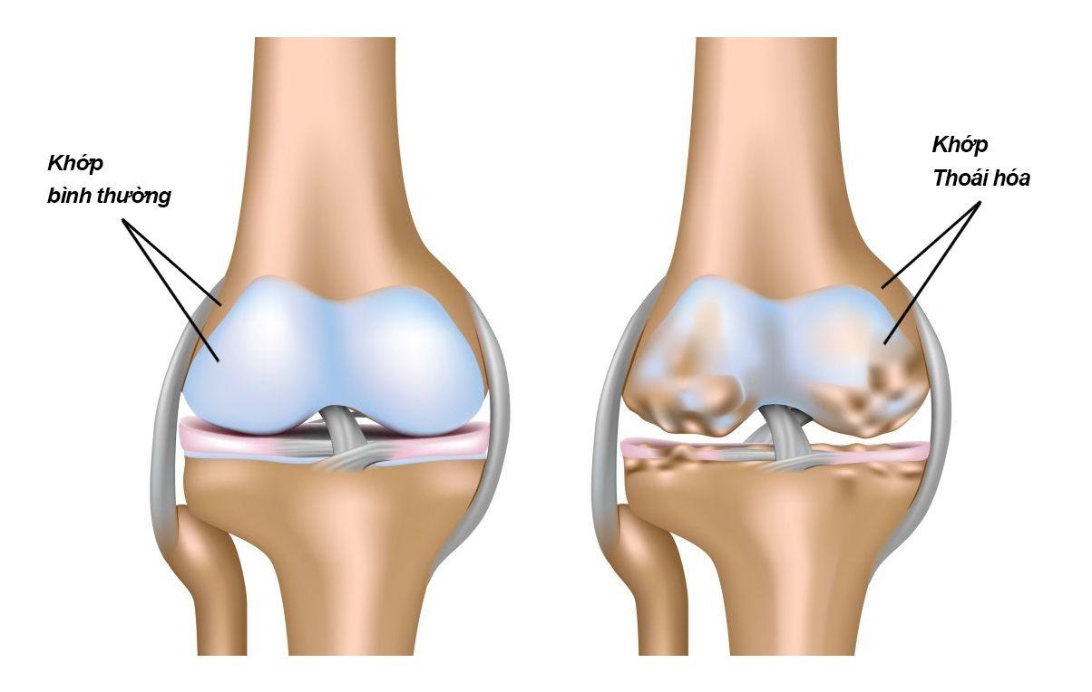 Cách chữa trị đau khớp gối ở người già tại nhà hiệu quả (3)
