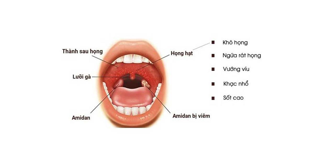 Viêm họng uống thuốc gì? Cách trị viêm họng hiệu quả tại nhà (2)