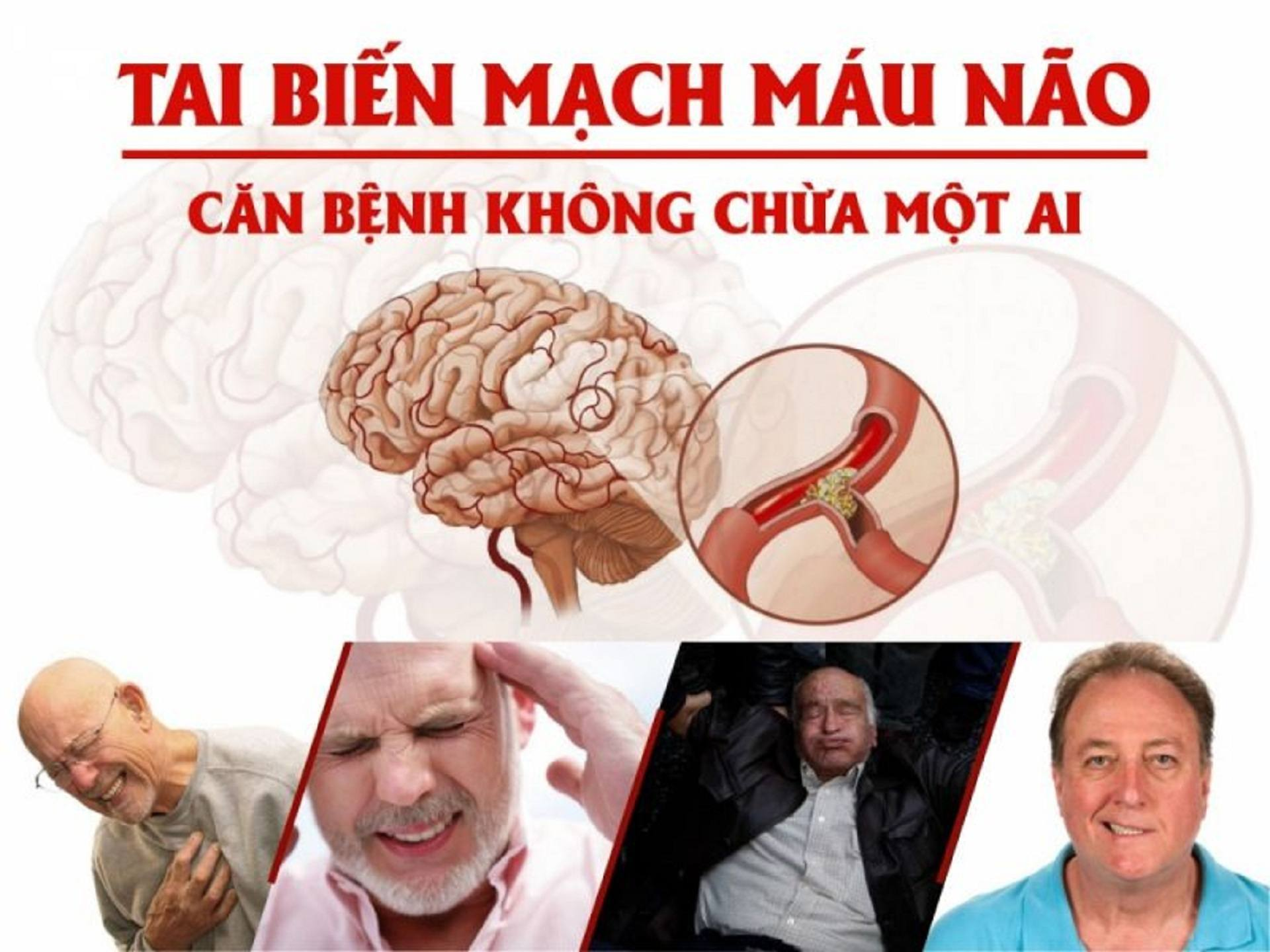 Tai biến mạch máu não là gì? Dấu hiệu nhận biết tai biến mạch máu não (3)