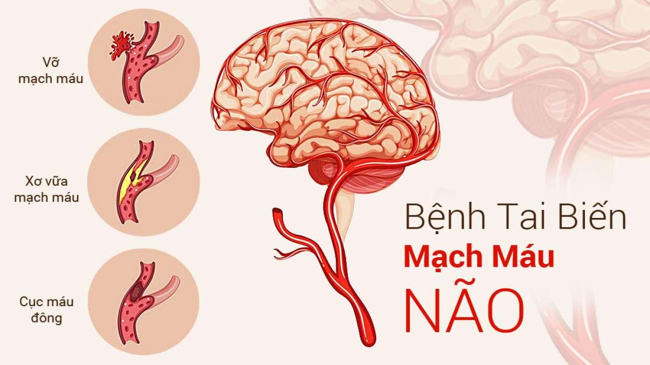 Tai biến mạch máu não là gì? Dấu hiệu nhận biết tai biến mạch máu não (1)