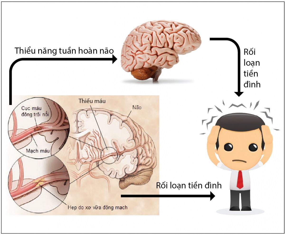 Thiểu năng tuần hoàn não là gì? Cách giảm các triệu chứng do thiểu năng tuần hoàn não? (1)